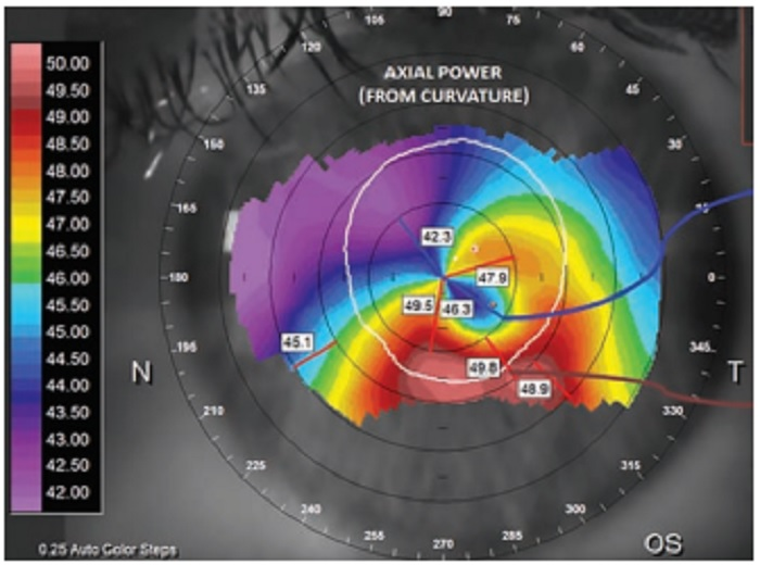 "Challenging the ""No Rub, No Cone"" Keratoconus Conjecture"